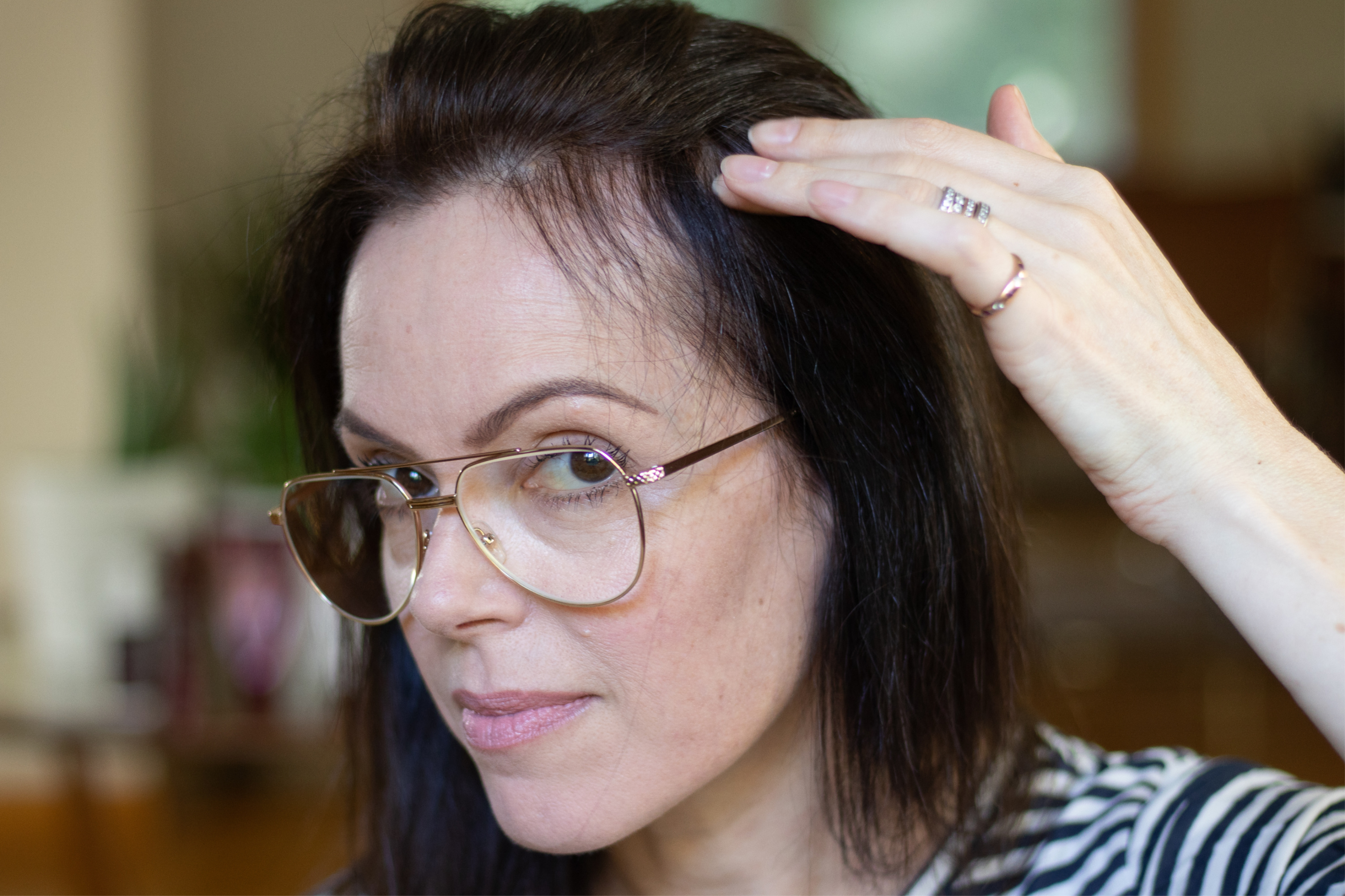 the answer to my thinning hair dilemma michelletyler
